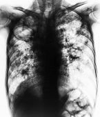 Pulmonary Tuberculosis . Film chest x-ray show fibrosiscavityinterstitial infiltration both lung due to Mycobacterium tuberculosis infection . poster