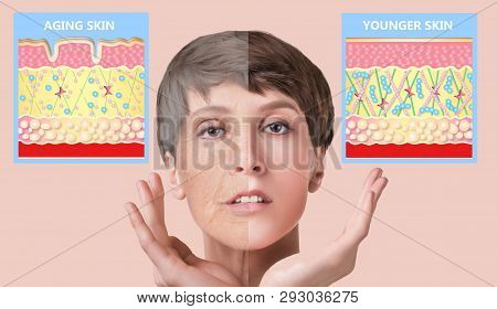 The younger skin and aging skin. elastin and collagen. A diagram of young and old face showing the decrease in collagen and broken elastin. poster
