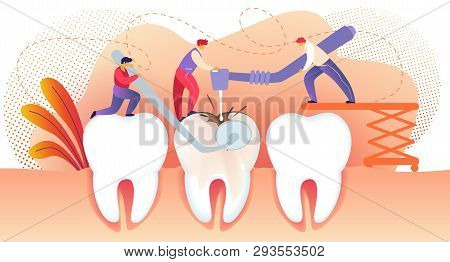 Little People Drilling Huge Unhealthy Tooth With Caries Hole. Teeth Treating. Man Holding Dentistry