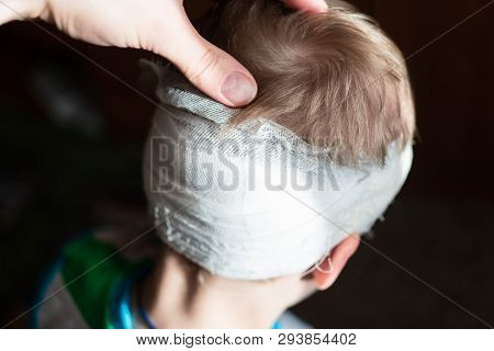 A Child With A Bandaged Head. A Pre-school Boy With A Head Injury. Childhood Trauma. Dissection Of T