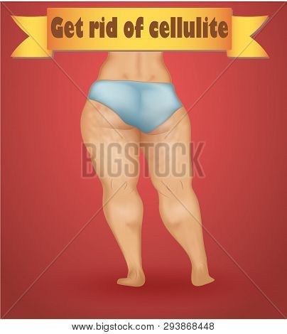 Poster About Woman Cellulite On Legs And Buttocks With Inscription On A Yellow Tape Get Rid Of Cellu