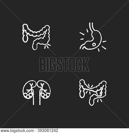 Abdominal Pain Chalk White Icons Set On Black Background. Constipation. Gastritis. Kidney Stones. Ir