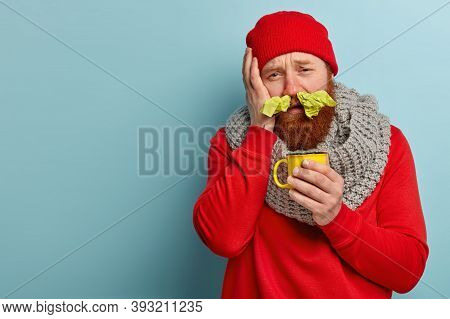 Stressful Displeased Ginger Man Suffers From Headache And Running Nose, Has Stuck Nostrils With Tiss