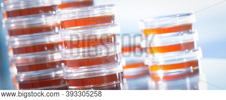 Pile petri dish for growing cultures of microorganisms in doctor hand , fungi and microbes. A Petri dish  ( Petrie dish. Petri plate or cell-culture dish)