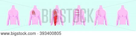Set Of Scar, Wound, Incision. Modern Cartoon Design Template With Various Models. Vector Illustratio