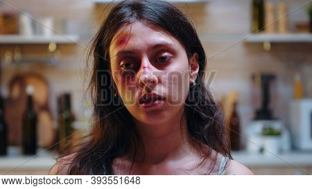 Beaten Wife Sitting On Chair Desolated And Hopeless. Traumatised Abused Terrified Beaten Wife Covere