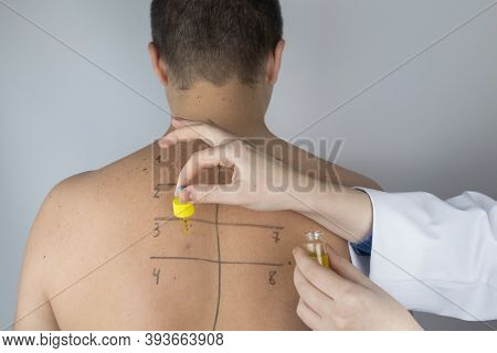 An Allergist In The Laboratory Conducts An Allergy Prick-test. Skin Test For Household, Food, Epider
