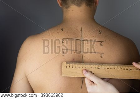 An Allergist Or Dermatologist Examines Red Spots On A Man's Face. The Male Suffers From A Rash, Hive