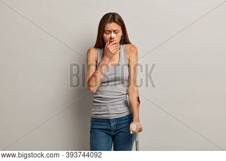 Dissatisfied Bruised Woman With Various Hematomes, Faces Traumatic Experience Because Of Recklessnes