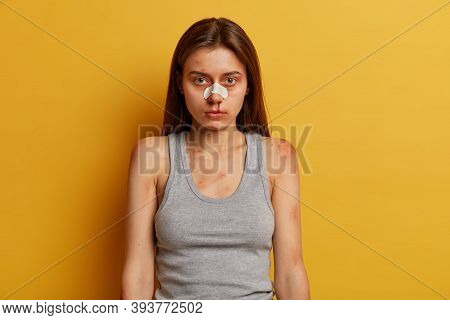 Serious Girl Victim Of Savage Attack Or Domestic Violence, Has Nose Bleed, Scratches And Bruises, Be