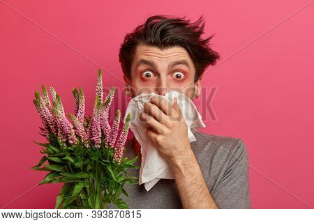 Man With Allergy Sneezes And Covers Nose With Napkin, Listens Advice From Allergist How To Cure Hay
