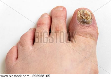 Sick Nail On The Foot. Toenail Fungus On White Background. Sore Toenail, Nail Fungus Close Up.
