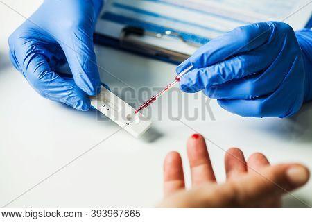 Coronavirus Covid-19 Quick Rapid Diagnostic Test Rdt,medical Worker Place Collected Patient Finger P