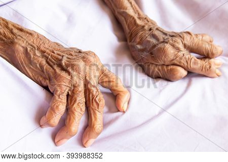 The Hands Of An Old Woman With Rheumatoid Arthritis. Diseases Caused By Degeneration Of The Joints O
