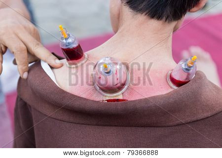 Back Skin Vacuum And Phlebotomy, The Chinese Alternative Medicine