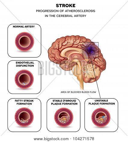 Stroke In The Brain Artery