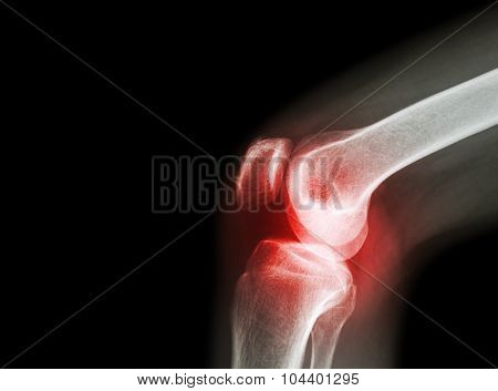 Film X-ray Knee Joint With Arthritis