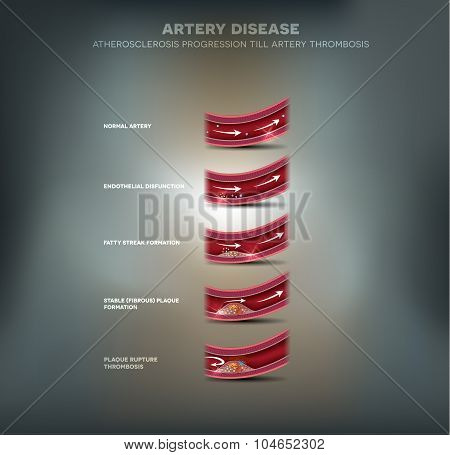 Artery Disease, Atherosclerosis Progression And Blood Clot