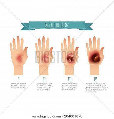 Degree of skin burns. Flat vector illustration for websites, brochures, magazines, web