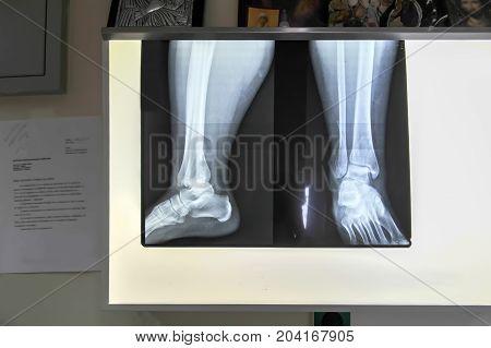 Medical feet bone radiography photo of woman