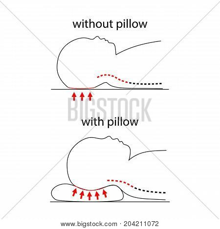 Illustration of spine line when baby sleeps without pillow and on healthy pillow. Kids and children health care. Flat head prevention. Can be used as tag, poster, demonstration, label, instruction