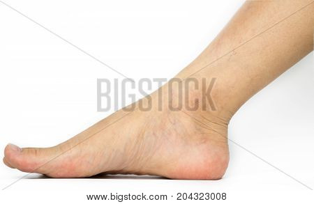 Closeup cracked heels and varicose veins on Asian woman leg and ankle isolated on white background with copy space. The problem from wearing high heels.