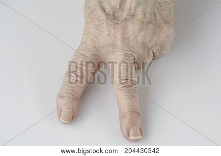 Victory Sign By Fingers