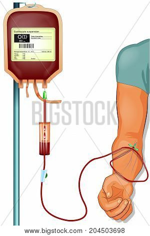 vector illustration of a donor blood transfusion to the patient
