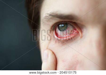 Mens red eye close-up, fatigue, problems with a blood vessels