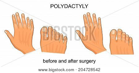 vector illustration of polydactyly before and after surgery