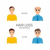 Male and female pattern baldness. Androgenetic alopecia treatment. Hair regrowth and replacement surgery. Receding hairline, thinning crown, bald patch medical solution. Vector illustration. poster
