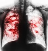 Pulmonary tuberculosis . Film x-ray of chest show cavity at right lung and interstitial infiltrate both lung due to TB infection . poster