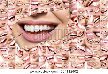 Conceptual background makes of set of laughing human faces with great teeth and detail of young woman's beautiful smile . Healthy beautiful male and female smiles. Teeth health, whitening, prosthetics