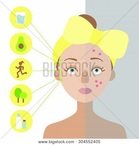 Girl With A Yellow Bow On Her Head. One Part Of Her Skin Is Healthy, The Other Is Problematic. On Th