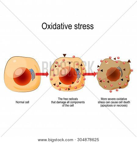 Oxidative Stress. From Normal Cell, To Oxidative Stress And Aggressive Free Radicals, Cell Death. Ve
