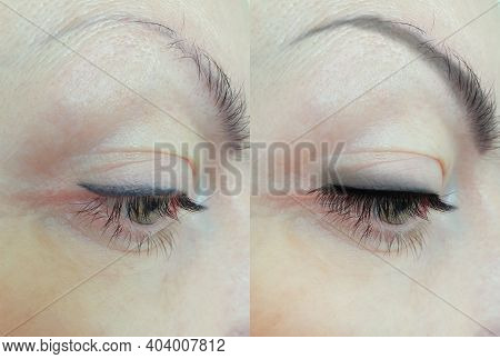 Girl Eyes Eyelashes Before And After Procedure