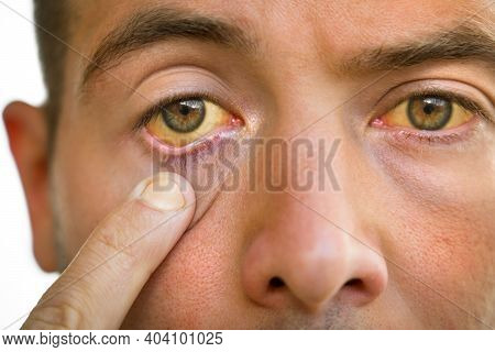 Young Man With Yellowish Eyes And Skin, Liver Disease. Symptoms Of High Bilirubin. Jaundice, Hepatos