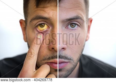 Man Face Divided Into Two Parts One Healthy And One Unhealthy. Yellowish Eyes And Skin. Bad Habits V