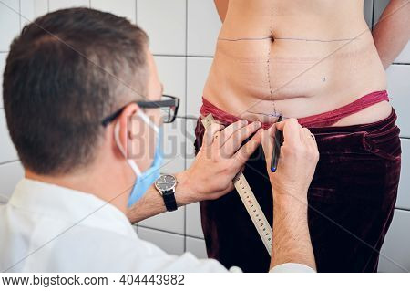 Close Up Of Male Doctor Drawing Marks On Woman Body Before Plastic Surgery. Plastic Surgeon Holding