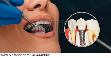 Dentistry, Dental Prosthetics Advertising. Dental Implant Near The Patients Open Mouth. Modern Stoma