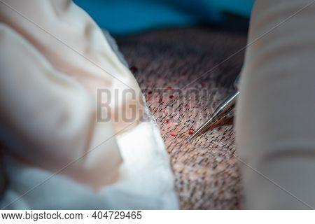 Hair Implantation Process, Closeup View Of Scalp, Hair Seeding
