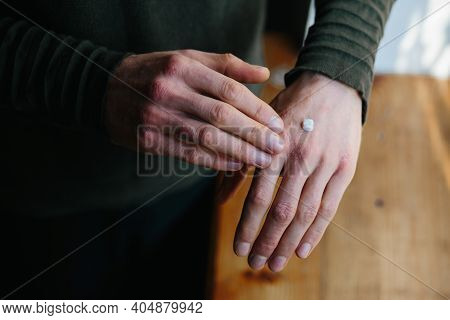 Applying An Emollient To Dry Flaky Skin As In The Treatment Of Psoriasis, Eczema And Other Dry Skin