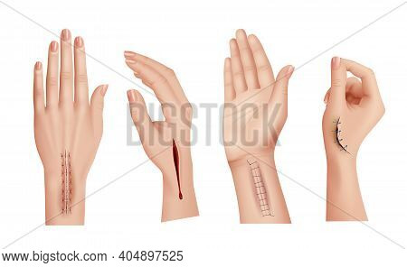 Surgical Stitches On Hands. Closeup Scars And Wounds On Human Hand Medical Damaged Skin Decent Vecto