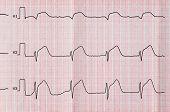 Emergency Cardiology. ECG with acute period macrofocal widespread anterior myocardial infarction poster