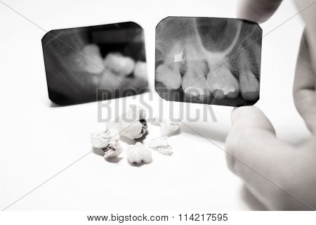 Film X-Ray scan for impacted tooth