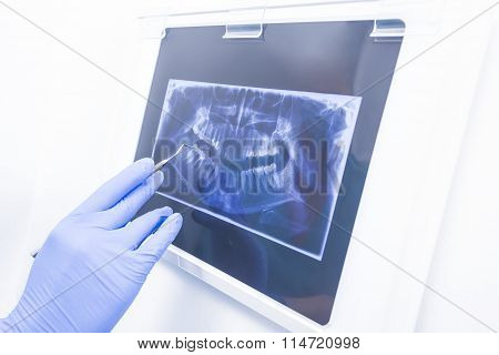 Panoramic Xray Denture Image