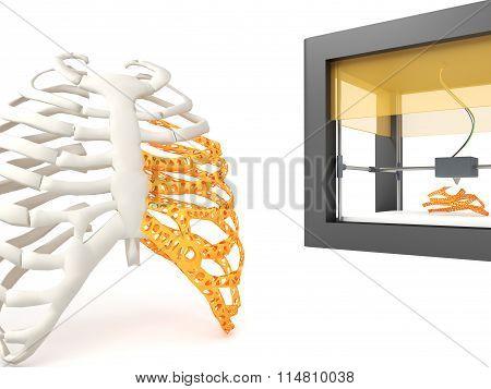 3d printed rib cage