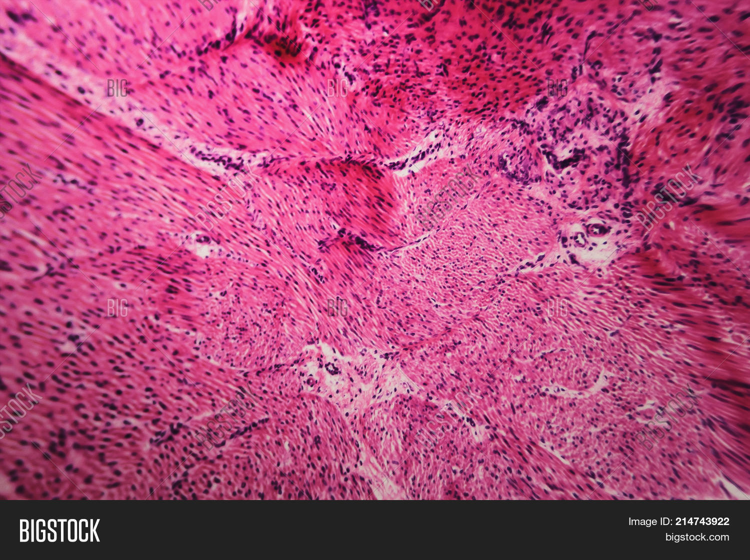 Cell Microscopic Image Photo Free Trial Bigstock