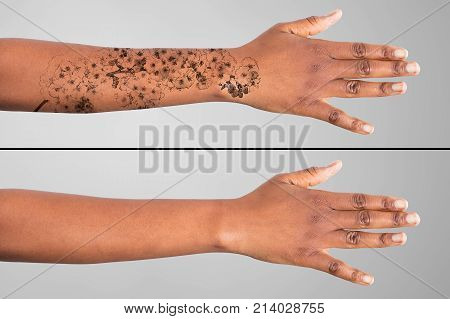 Laser Tattoo Removal On Woman's Hand Against Grey Background