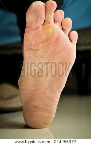 wart under foot can treat by salicylic acid. poster